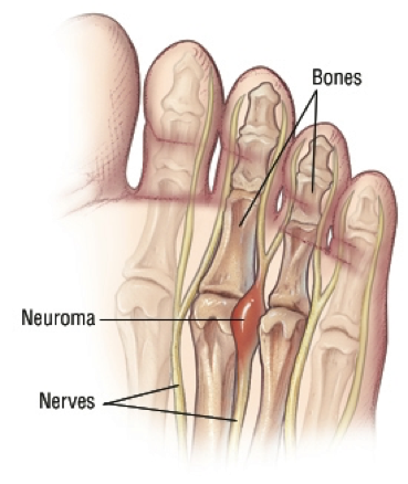 Natural Cure For Mortons Neuroma