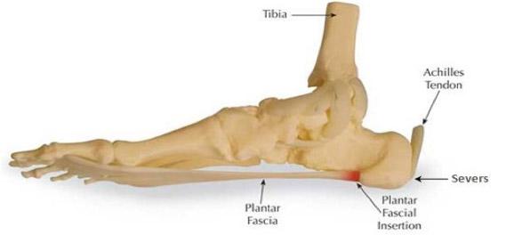Heel Pain - Foot Bio Tec